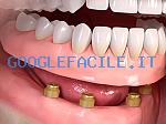 Dott. Virginio Pisaroni | Studio Medico Dentistico