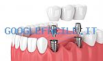Dr. Sergio Mazzanti   Studio Odontoiatrico