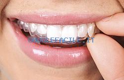 Studio dentistico Fornaca | Ortodonzia e Protesi