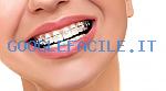 Studio Dentistico Scorca | Implantologia e Impianti Dentali